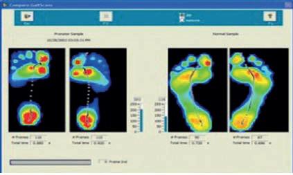 اشعه ایکس, سی تی اسکن و تصاویر سه بعدی در تولید کفش